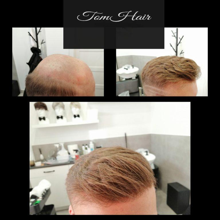uzupełnienie włosów warszawa