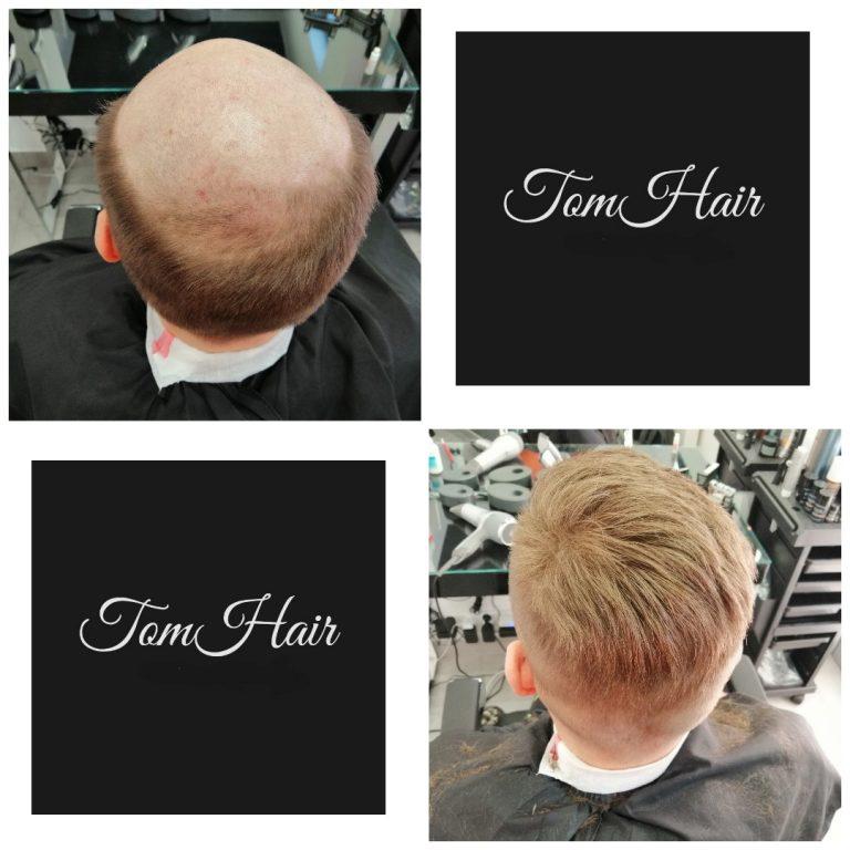 mikropigmentacja włosów warszawa
